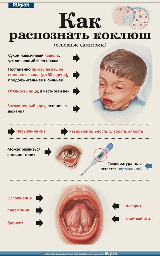 Коклюш у дітей діагностика форми і особливості хвороби