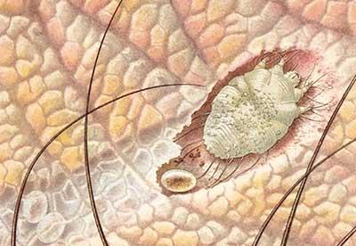 Короста – наскільки небезпечне захворювання і чим лікувати?