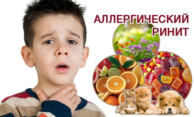 Краплі в ніс від алергії для дітей і дорослих: список, ціни, назви ефективних препаратів
