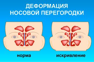 Краща мазь від сухості в носі і інші методи лікування симптому