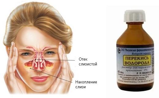 Лікування гаймориту перекисом водню