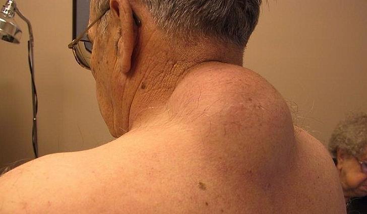 Лікування ліпоми в домашніх умовах