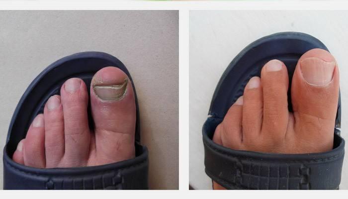Лікування оцтом грибка нігтів на ногах