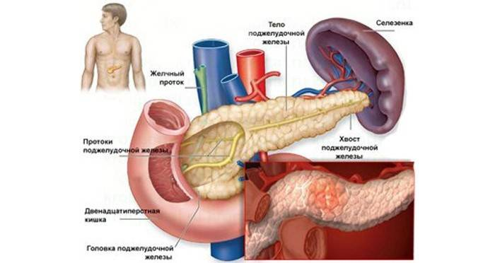 Лікування панкреатиту в домашніх умовах народними засобами і його симптоми