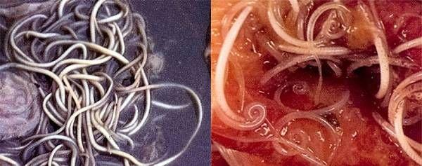 Лікування паразитів народними засобами у дорослих