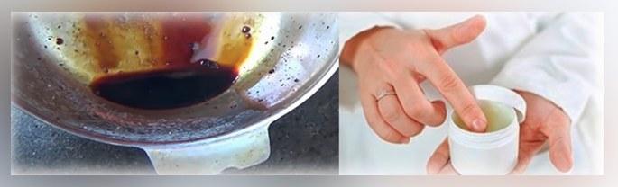 Лікування псоріазу в домашніх умовах народними засобами