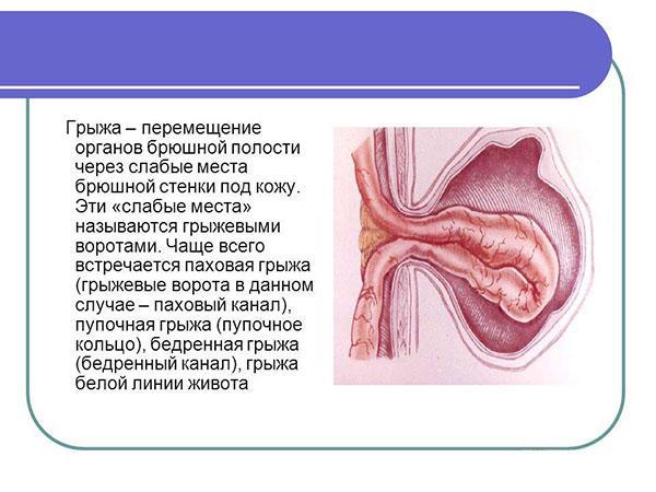Лікування пупкової грижі без операції у чоловіків народними засобами