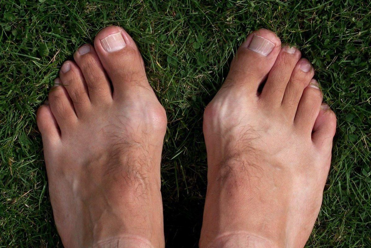 Лікування шишок на ногах народними засобами