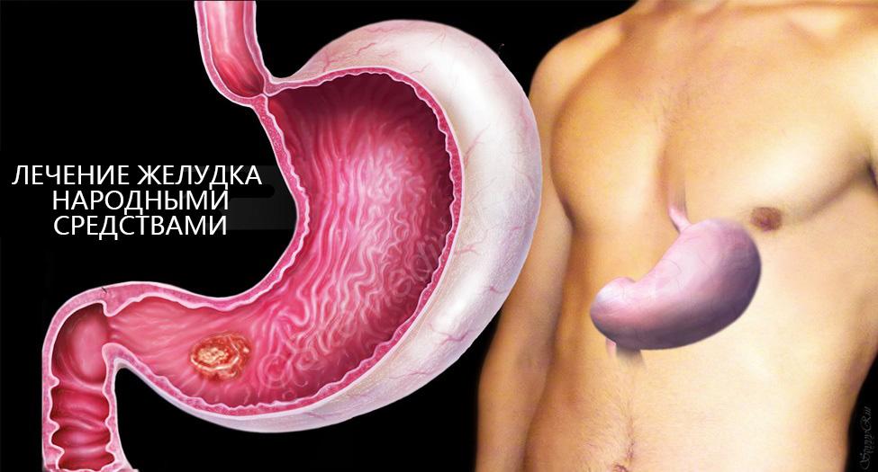 Лікування шлунково-кишкового тракту народними засобами