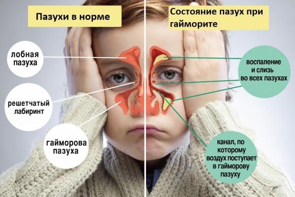 Лікування і симптоми гаймориту у дітей: як розпізнати перші ознаки хвороби у малюків і підлітків і як вилікувати в домашніх умовах