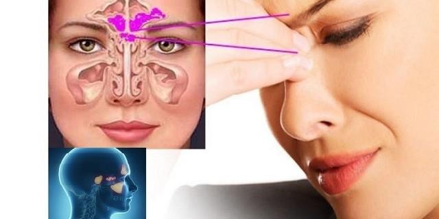 Лікування синуситу лазером – Хвороби носа