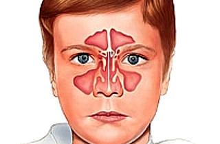Лікування синуситу у дітей – як вилікувати дитину в домашніх умовах 2019