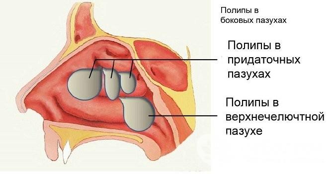 Лікування синуситу у дорослих від таблеток до народних методів