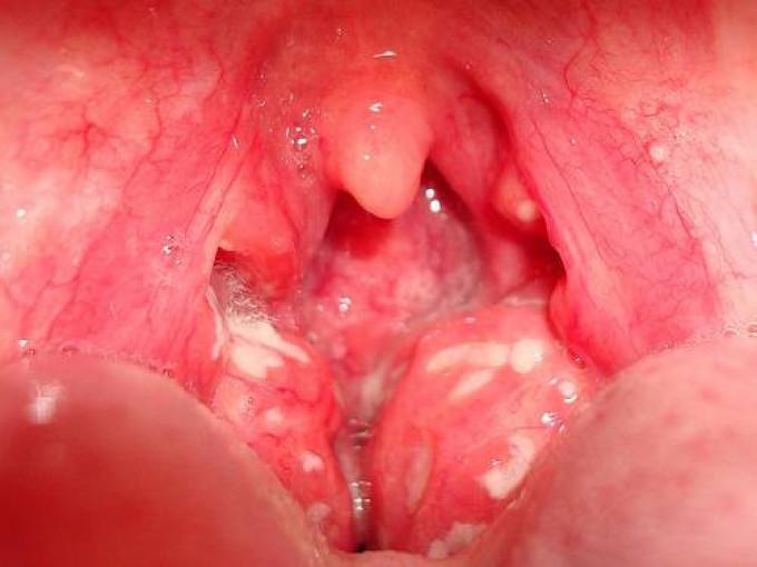 Лікування тонзиліту, як вилікувати тонзиліт швидко і ефективно физеопроцедурами, симптоми хвороби у дорослого без температури