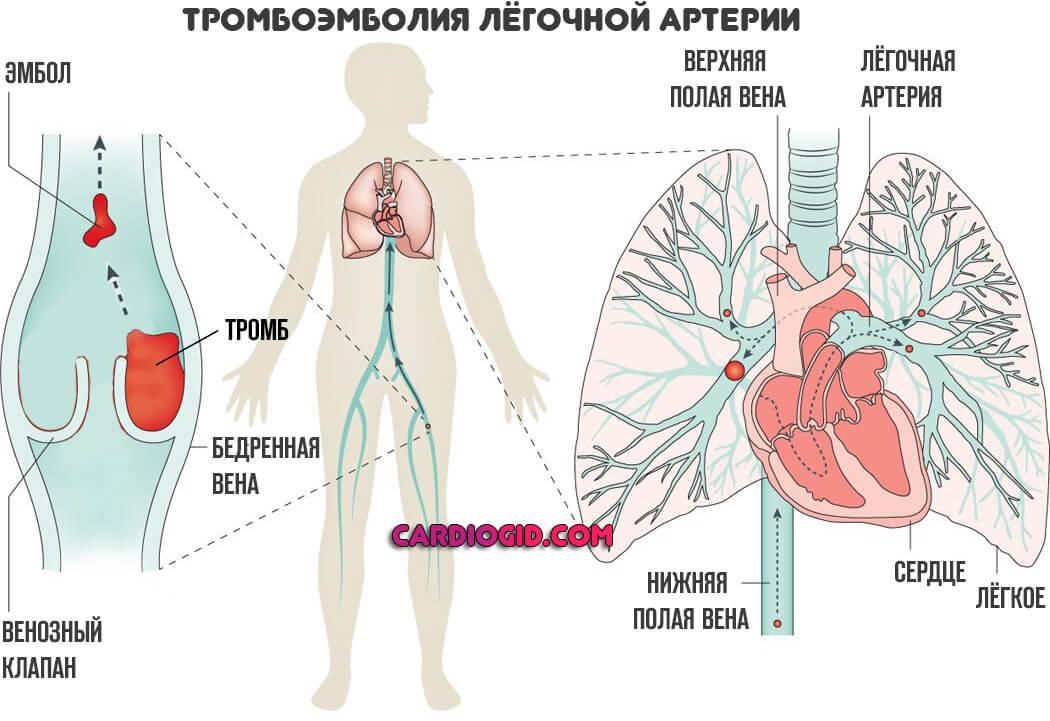 Лікування тромбоемболії легеневої артерії ТЕЛА