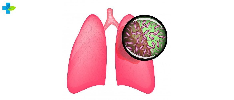Лікування туберкульозу в домашніх умовах основні принципи