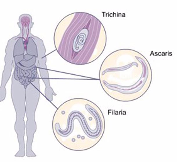 Лікування від паразитів народними засобами в домашніх умовах