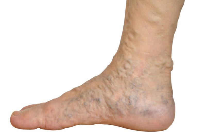 Лікування варикозу вен на ногах народними засобами