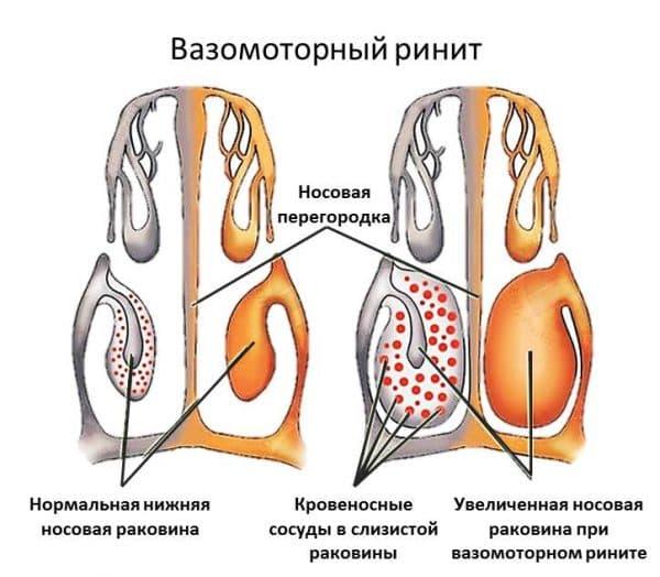 Лікування вазомоторного риніту в домашніх умовах народними засобами