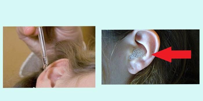 Лікування вуха перекисом водню при отиті