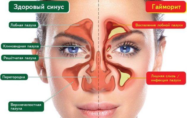 Лікування запаху з носа народними засобами