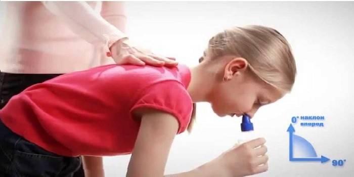 Лікування затяжного нежитю у дорослих