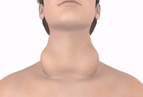 Лікування зоба щитовидної залози народними засобами