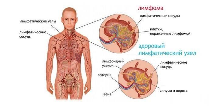 Лімфаденопатія шийних лімфовузлів. Симптоми і лікування