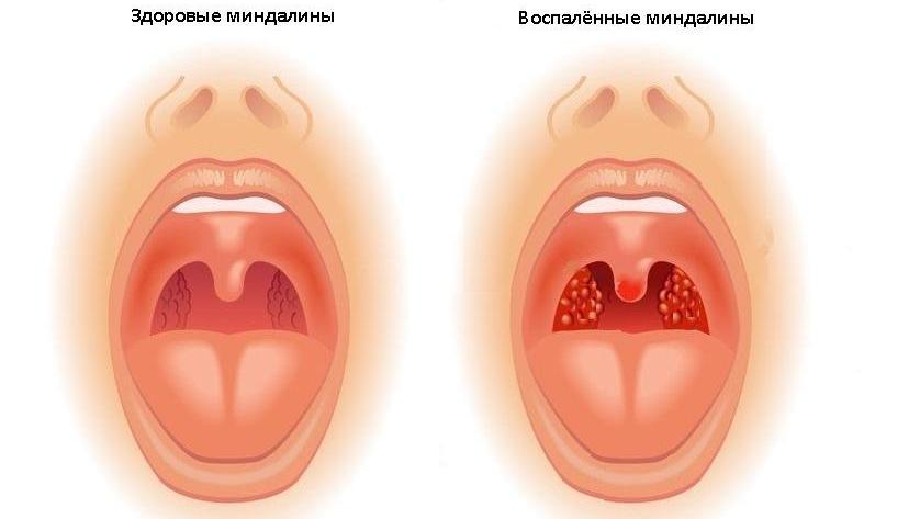 ЛОР-операції: чи варто видаляти мигдалини? Потрібно видаляти гланди