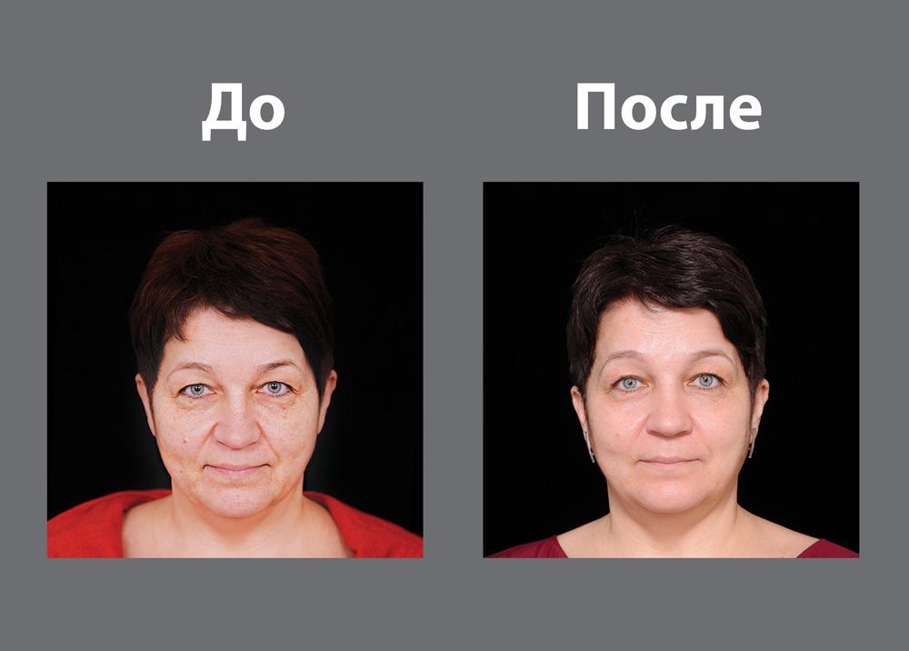 Маски з косметичних масел підтягнутий шкіру і сповільнюють старіння