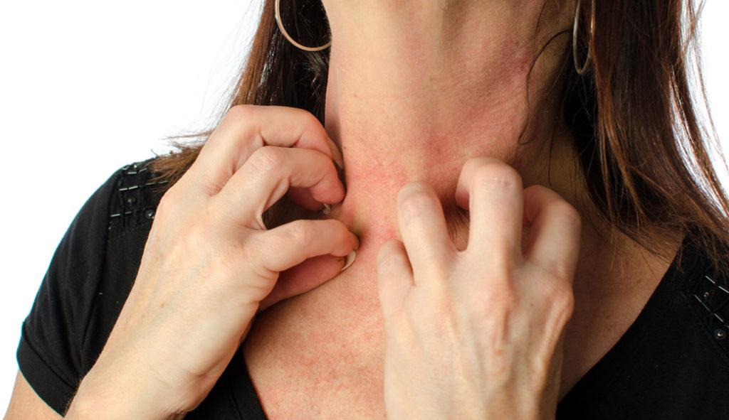 Чим приглушити алергічний свербіж?