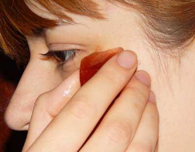 Чим заспокоїти прищі і прибрати з них червоність
