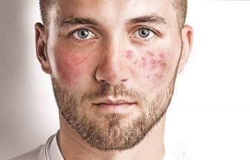 Народні засоби від куперозу на обличчі
