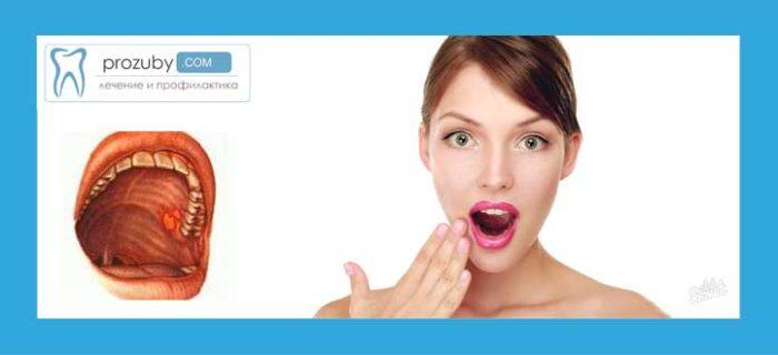 Неприємний запах з рота причини і лікування