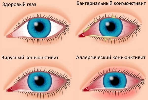Нежить, чхання сверблять очі — Kashelisopli