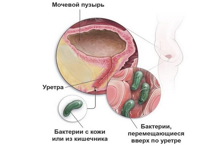 Інфекція сечовивідних шляхів Симптом Інфо