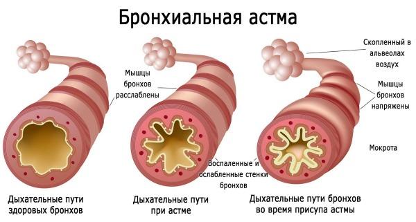 Інгаліпт для дітей. Інструкція по застосуванню, зі скількох років можна спрей, як застосовувати до року, після 1, 2, 3 років. Відгуки