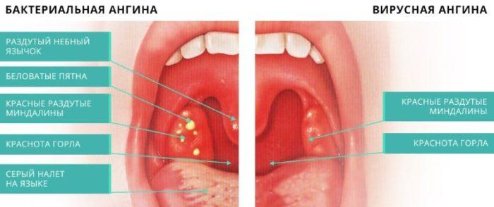 Інгаляції при хворому горлі