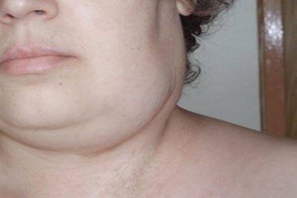 Новоутворення на шиї: лікування пухлин шиї. Симптоми, ознаки, діагностика і лікування раку шиї