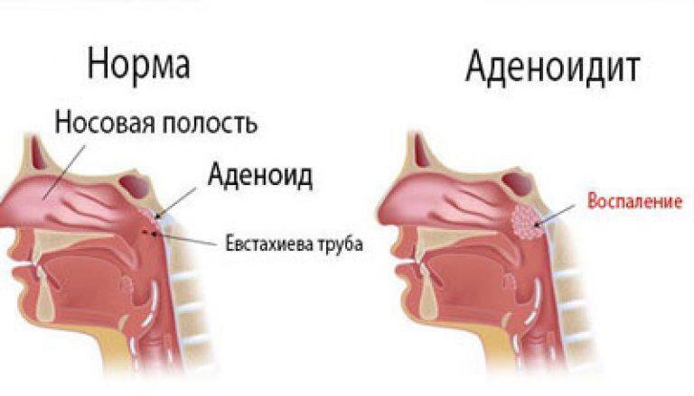 Інструкція до препарату Деринат: призначення, дозування і побічні дії. Інструкція по застосуванню деринат