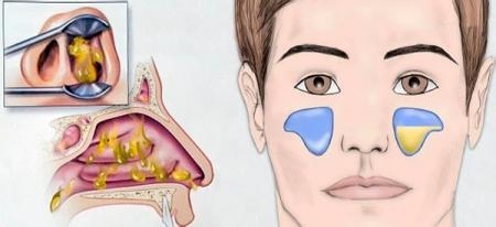 Інструкція по застосуванню Супракса при гаймориті у дорослих і дітей