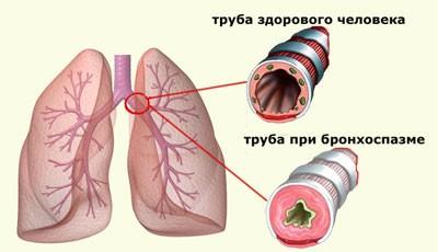 Інструкція щодо застосування кальцію глюконату при гаймориті і нежиті для дорослих і дітей