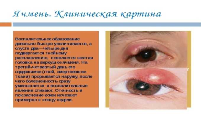 Інструкція щодо застосування вушних крапель Ципрофлоксацин для дітей і дорослих аналоги