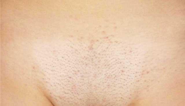 Прищі після гоління в інтимній зоні: сучасні методи лікування