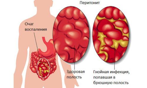 Псевдокиста підшлункової залози: що це таке, лікування, симптоми, МКБ-10, наслідки, причини, класифікація, діагностика, ускладнення, профілактика