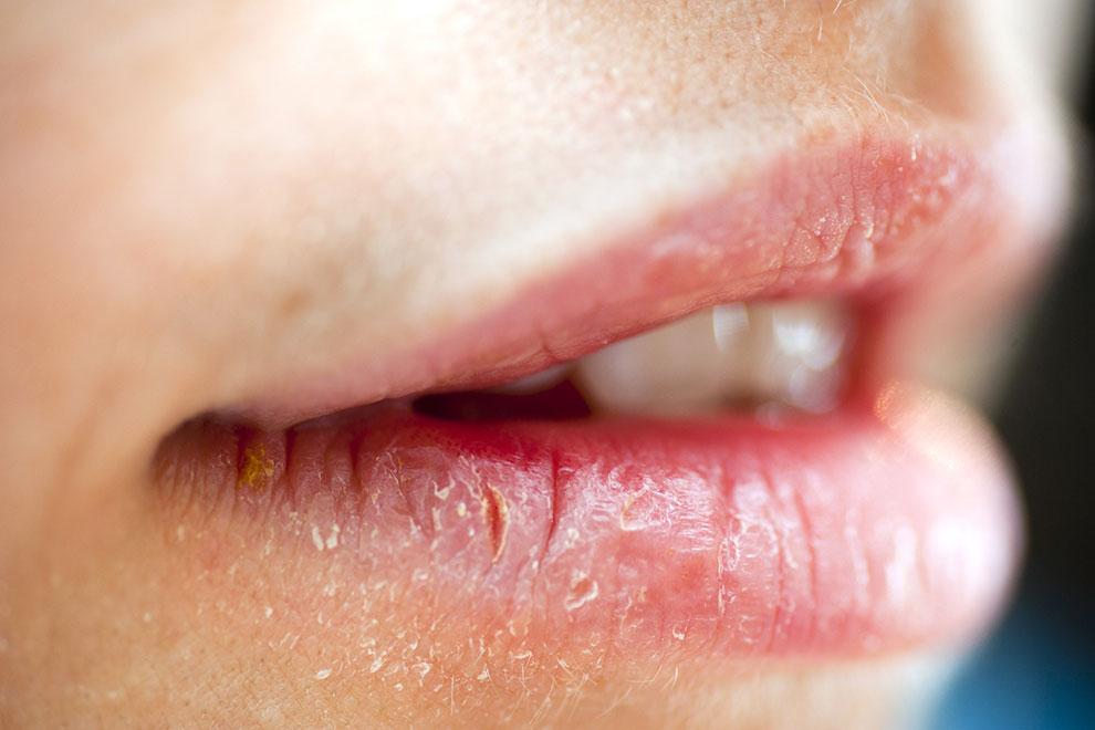 Що робити, якщо шкіра обвітрилася обличчя