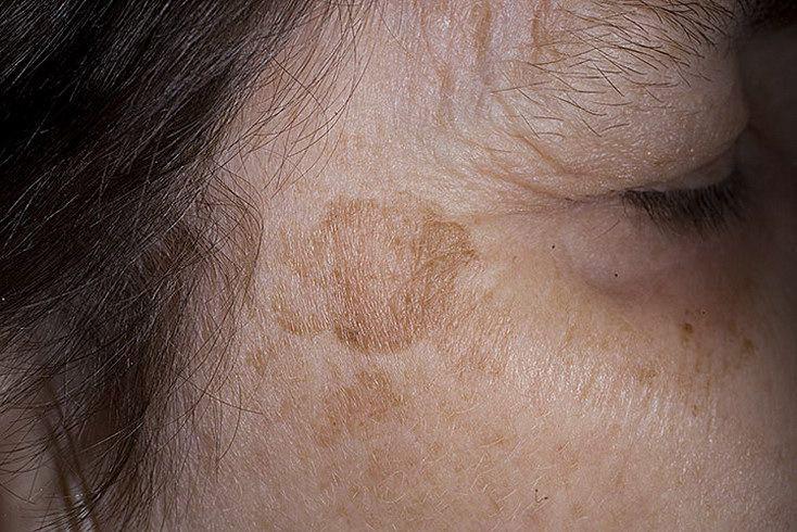 Вікова пігментація на шкірі, як краще прибрати? Поради лікарів
