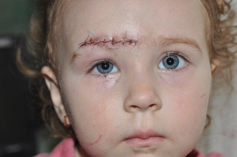 Видалення рубців і шрамів у дітей