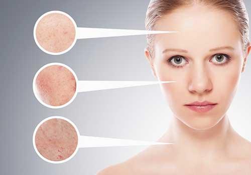 Як макіяжем приховати прищі і не нашкодити шкірі