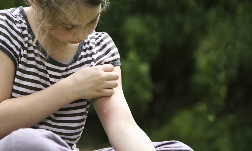 Як позбутися слідів укусів комарів